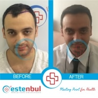 before after patient
