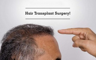 Hair Transplant Surgery: Do You Need It?